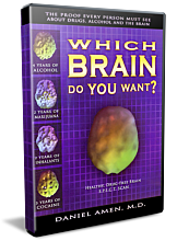 Which Brain Do You Want?