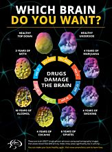 [Poster large] Which Brain Do You Want?